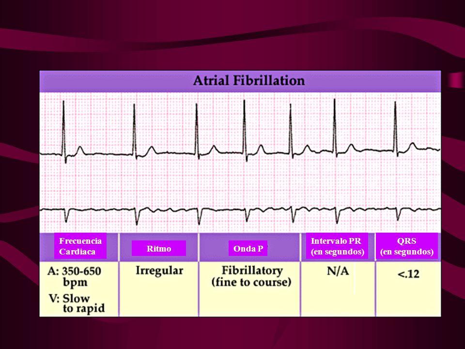Frecuencia Cardiaca RitmoOnda P Intervalo PR (en segundos) QRS (en segundos)