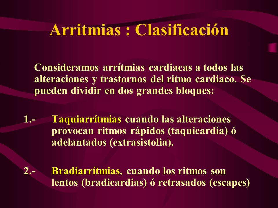 Arritmias : Clasificación Consideramos arrítmias cardiacas a todos las alteraciones y trastornos del ritmo cardiaco. Se pueden dividir en dos grandes