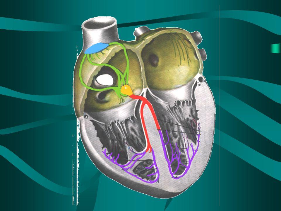 Arritmia Alteración de la frecuencia y el ritmo cardíaco causado por una falla en el sistema de conducción