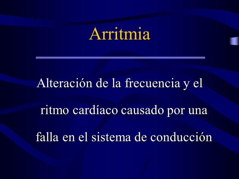 Taquiarritmias 1.