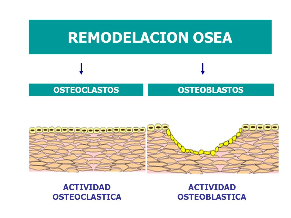 REMODELACION OSEA ACTIVIDAD OSTEOCLASTICA ACTIVIDAD OSTEOBLASTICA OSTEOCLASTOSOSTEOBLASTOS