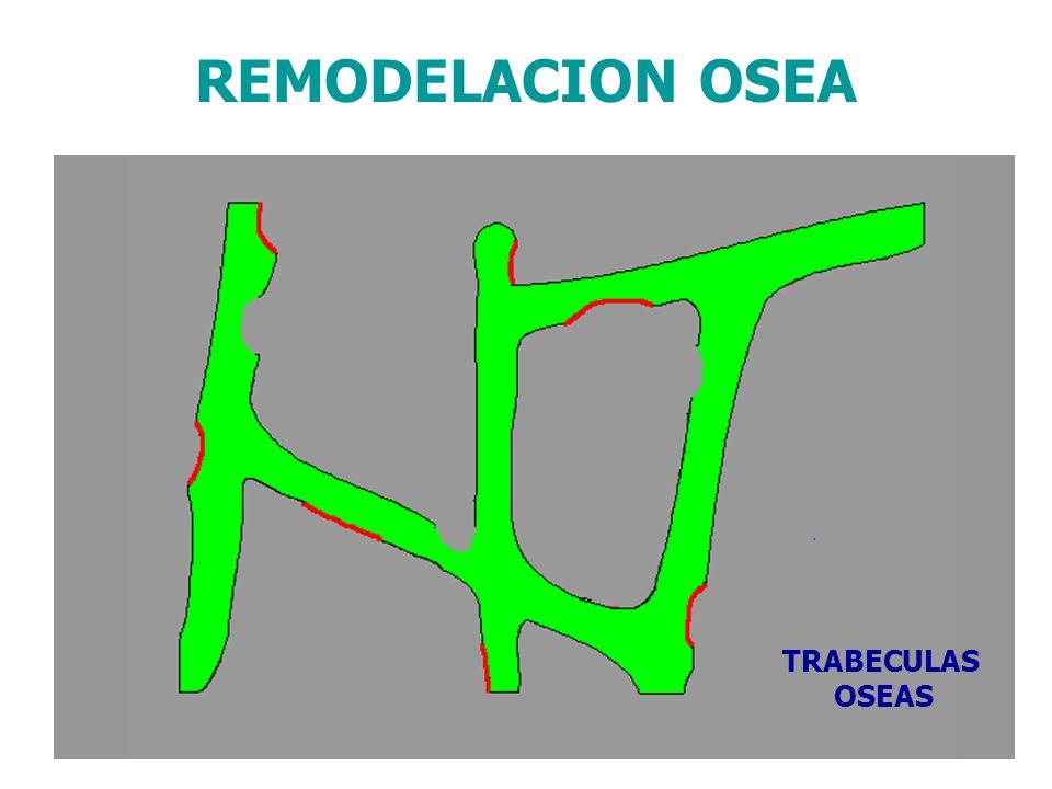 TRABECULAS OSEAS REMODELACION OSEA