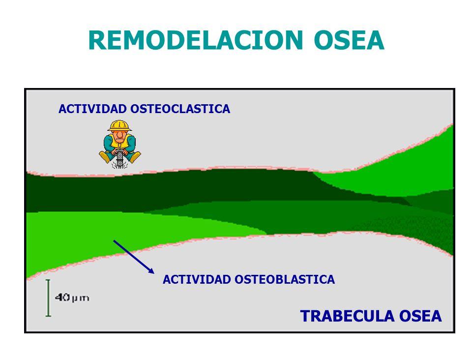 ACTIVIDAD OSTEOBLASTICA ACTIVIDAD OSTEOCLASTICA TRABECULA OSEA REMODELACION OSEA