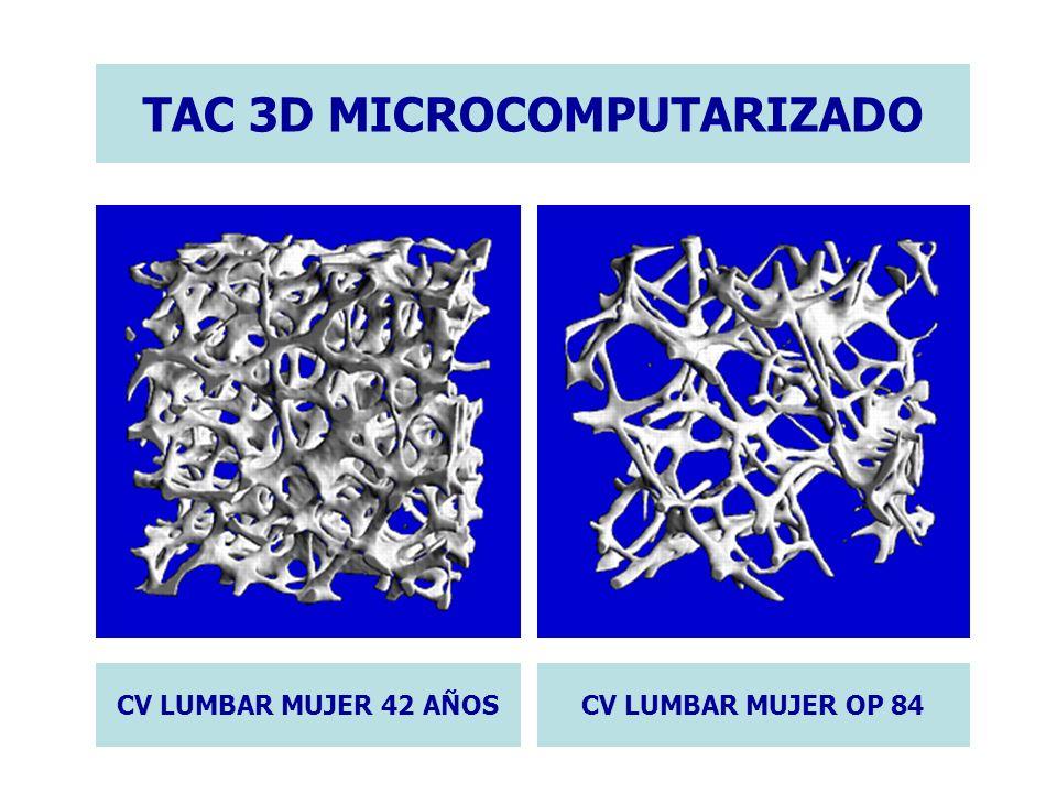CV LUMBAR MUJER 42 AÑOSCV LUMBAR MUJER OP 84 TAC 3D MICROCOMPUTARIZADO