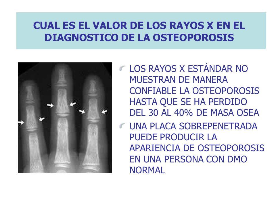 CUAL ES EL VALOR DE LOS RAYOS X EN EL DIAGNOSTICO DE LA OSTEOPOROSIS LOS RAYOS X ESTÁNDAR NO MUESTRAN DE MANERA CONFIABLE LA OSTEOPOROSIS HASTA QUE SE
