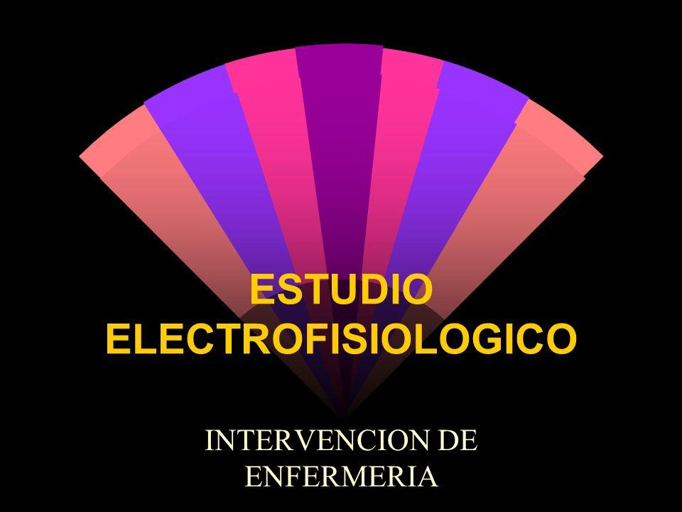 ESTUDIO ELECTROFISIOLOGICO INTERVENCION DE ENFERMERIA