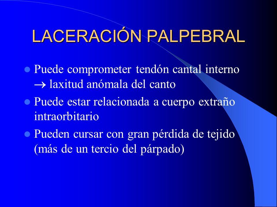 LACERACIÓN PALPEBRAL Puede comprometer tendón cantal interno laxitud anómala del canto Puede estar relacionada a cuerpo extraño intraorbitario Pueden
