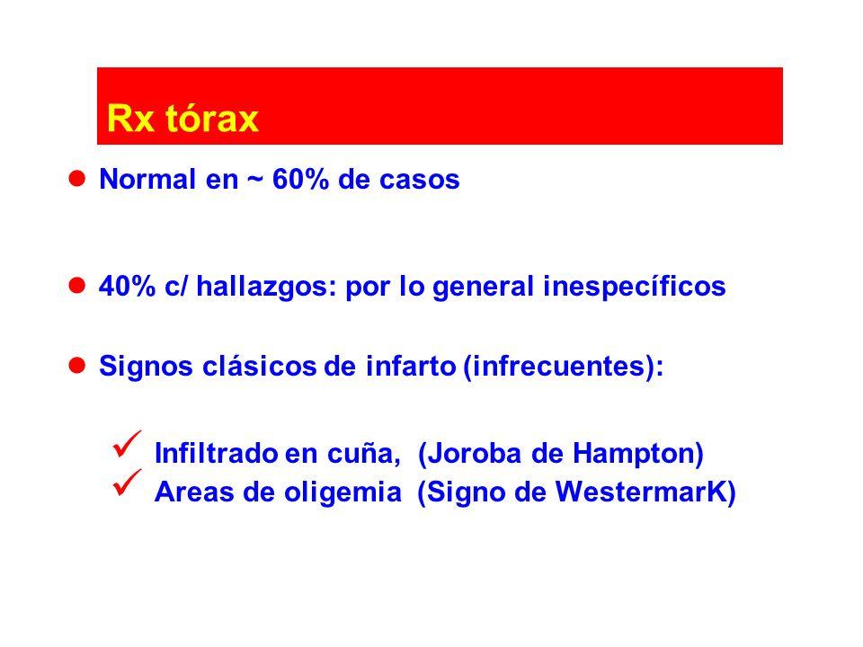 Rx tórax Normal en ~ 60% de casos 40% c/ hallazgos: por lo general inespecíficos Signos clásicos de infarto (infrecuentes): Infiltrado en cuña, (Jorob