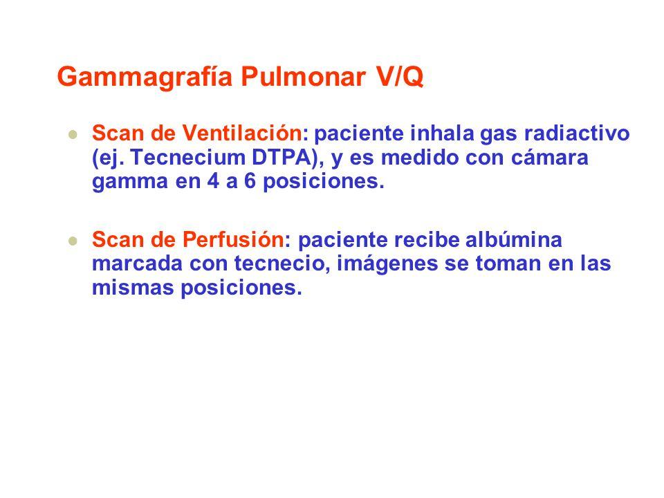 Gammagrafía Pulmonar V/Q Scan de Ventilación: paciente inhala gas radiactivo (ej. Tecnecium DTPA), y es medido con cámara gamma en 4 a 6 posiciones. S