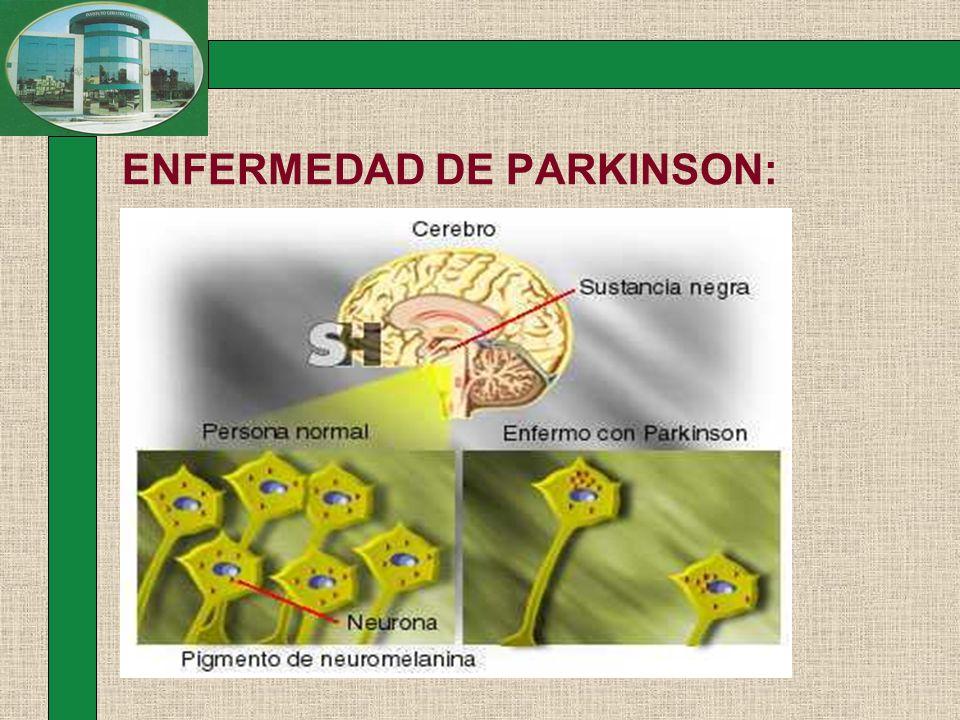 ENFERMEDAD DE PARKINSON: Factores de Riesgo Mayor espectativa de vida.