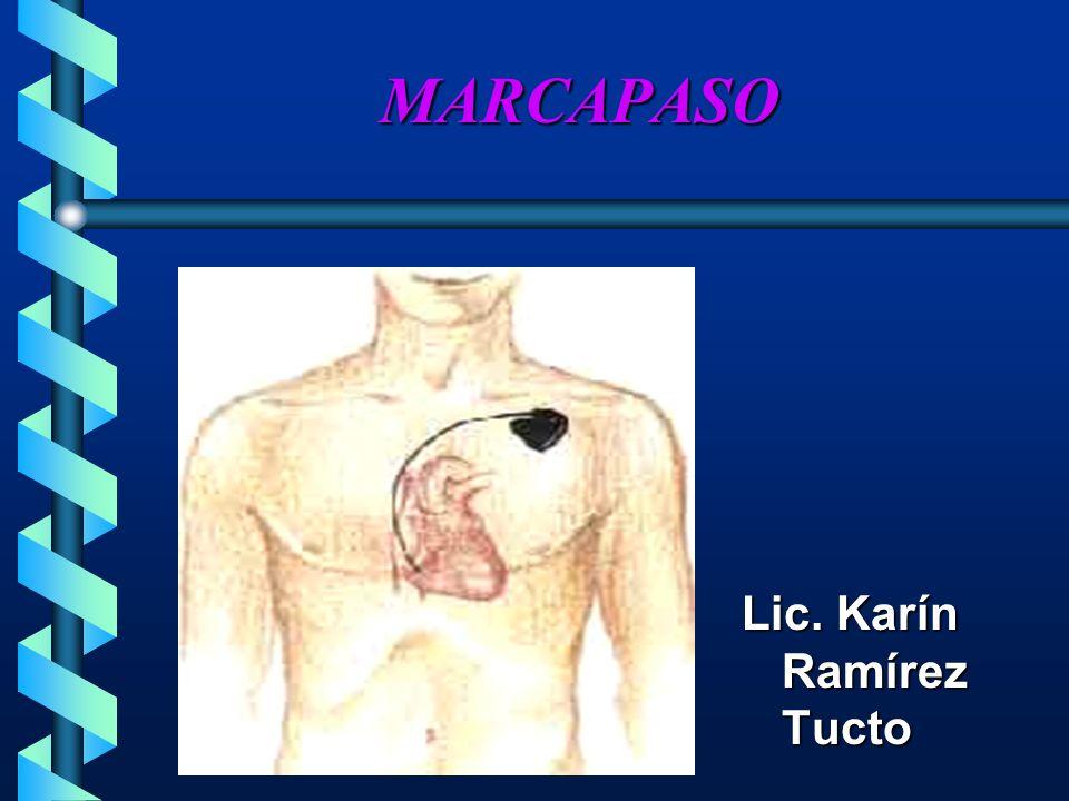 TERMINOLOGÍA DEL MARCAPASO FRECUENCIA FIJA (asincrónico) Envía estimulo con una frecuencia predeterminadaEnvía estimulo con una frecuencia predeterminada ADEMANDA (SINCRÓNICA) Cuando es necesarioCuando es necesario FRECUENCIAL AURICULO VENTRICULAR (AV) (estimulación de doble cámara) Envía estímulo a la aurícula y al ventrículo; con retraso AV llenado ventricularEnvía estímulo a la aurícula y al ventrículo; con retraso AV llenado ventricular