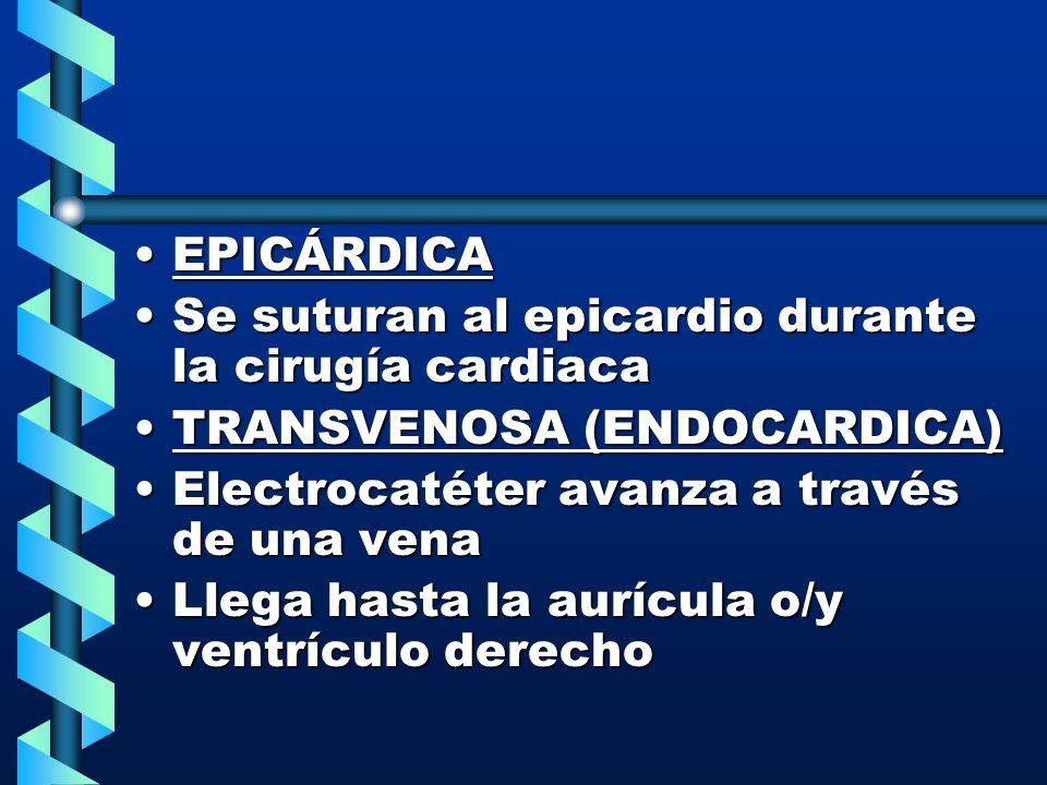 EPICÁRDICAEPICÁRDICA Se suturan al epicardio durante la cirugía cardiacaSe suturan al epicardio durante la cirugía cardiaca TRANSVENOSA (ENDOCARDICA)T