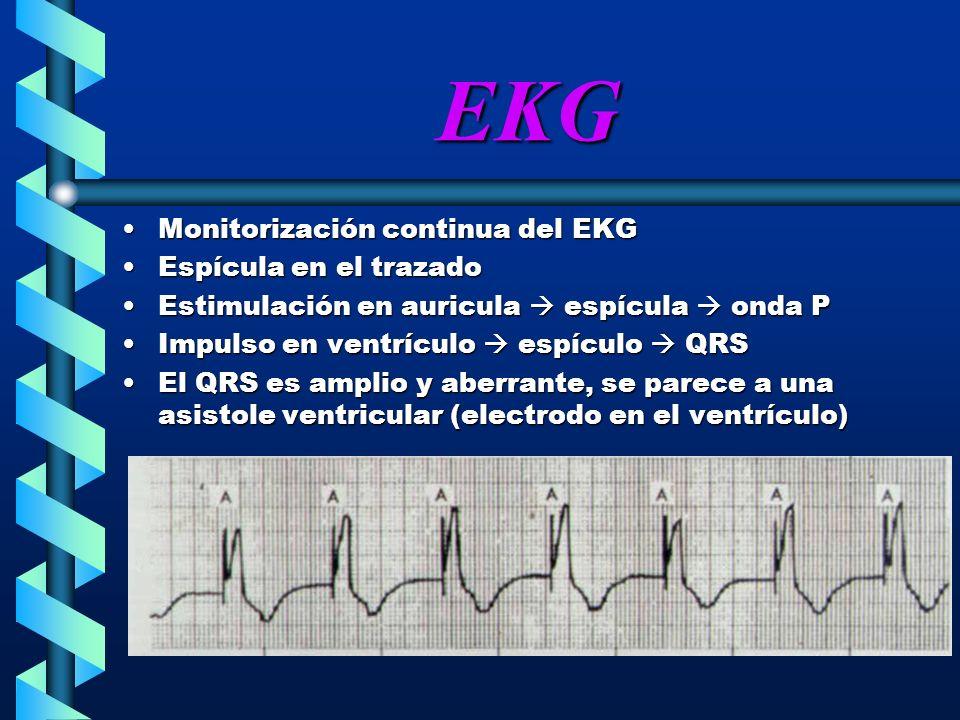 EKG Monitorización continua del EKGMonitorización continua del EKG Espícula en el trazadoEspícula en el trazado Estimulación en auricula espícula onda