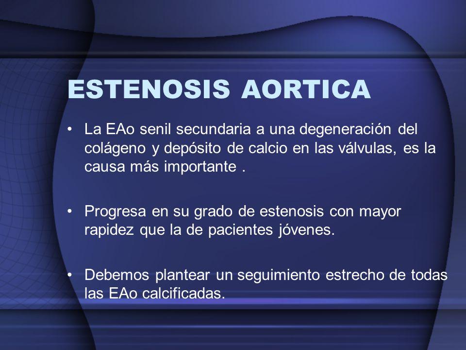 ESTENOSIS AORTICA La EAo senil secundaria a una degeneración del colágeno y depósito de calcio en las válvulas, es la causa más importante. Progresa e