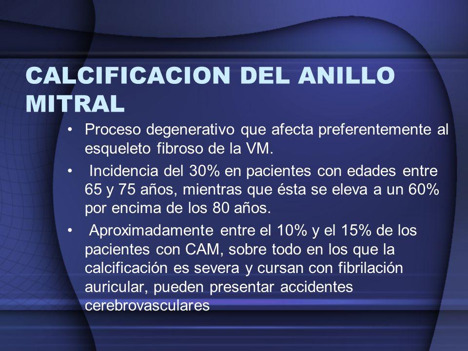 CALCIFICACION DEL ANILLO MITRAL Proceso degenerativo que afecta preferentemente al esqueleto fibroso de la VM. Incidencia del 30% en pacientes con eda