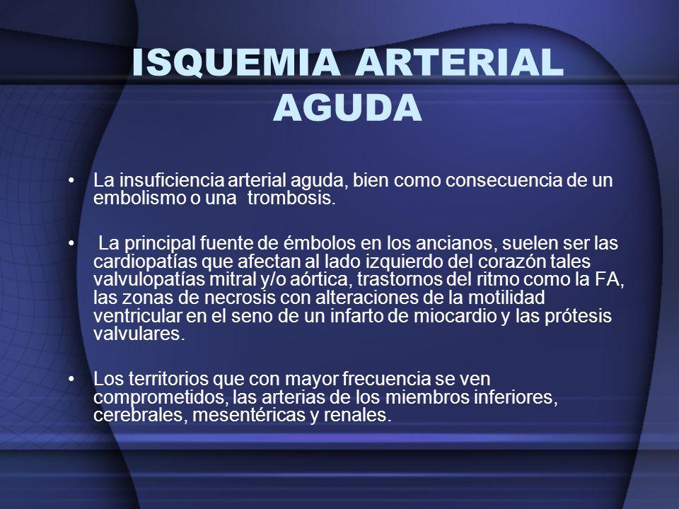 ISQUEMIA ARTERIAL AGUDA La insuficiencia arterial aguda, bien como consecuencia de un embolismo o una trombosis. La principal fuente de émbolos en los