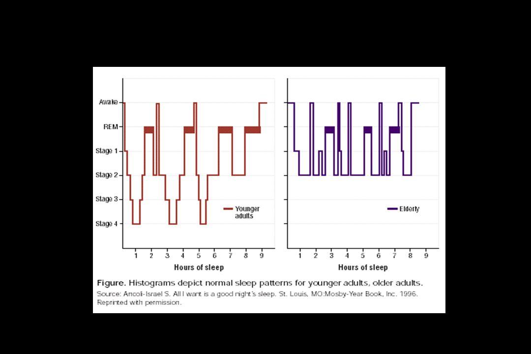 Quejas del sueño en el anciano w El paciente tiene la percepción de no tener un sueño satisfactorio: Dificultad para quedarse dormido Dificultad para mantener la continuidad del sueño (frecuentes despertares) Despertar precoz (muy temprano) Somnolencia diurna y necesidad de siestas Sensación de que el sueño no es reparador