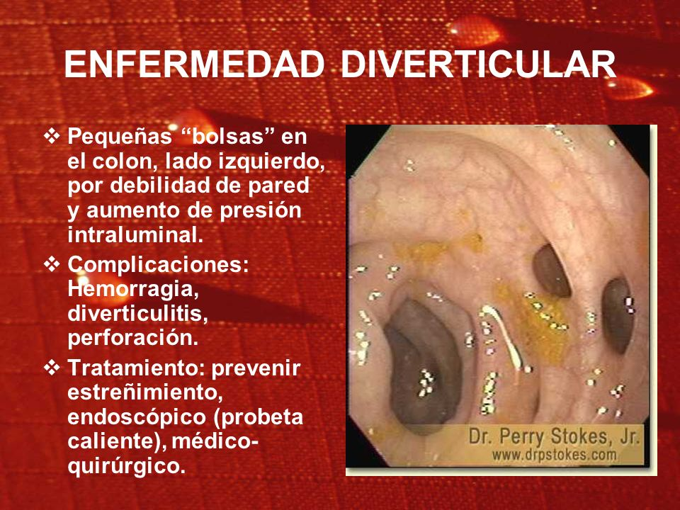 HEMORRAGIA DIGESTIVA: Manejo. Soporte hemodinámico. Endoscopía diagnóstica y terapéutica. Tratamiento de la causa.