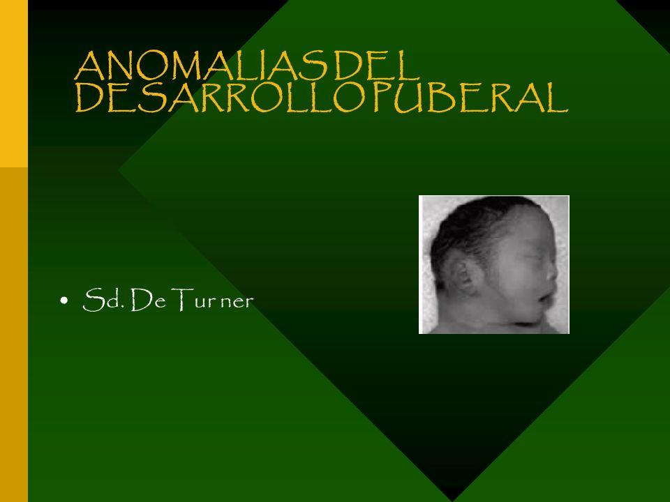 ANOMALIAS DEL DESARROLLO PUBERAL Sd. De Tur ner