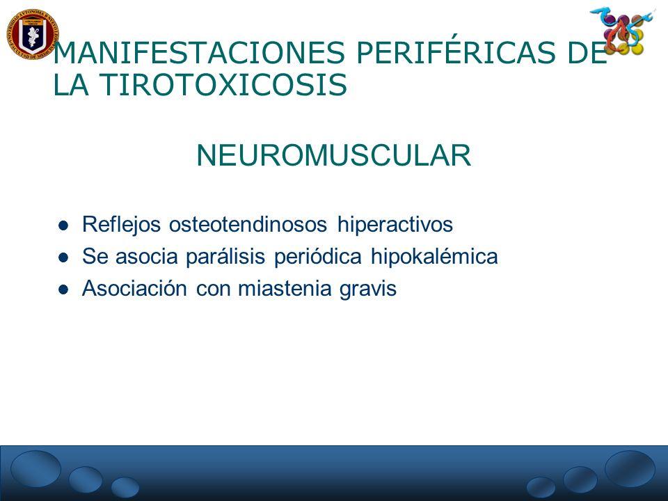 MANIFESTACIONES PERIFÉRICAS DE LA TIROTOXICOSIS NEUROMUSCULAR Reflejos osteotendinosos hiperactivos Se asocia parálisis periódica hipokalémica Asociac