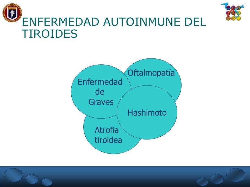 Atrofia tiroidea Oftalmopatía Enfermedad de Graves Hashimoto ENFERMEDAD AUTOINMUNE DEL TIROIDES