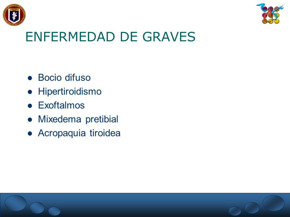 ENFERMEDAD DE GRAVES Bocio difuso Hipertiroidismo Exoftalmos Mixedema pretibial Acropaquia tiroidea