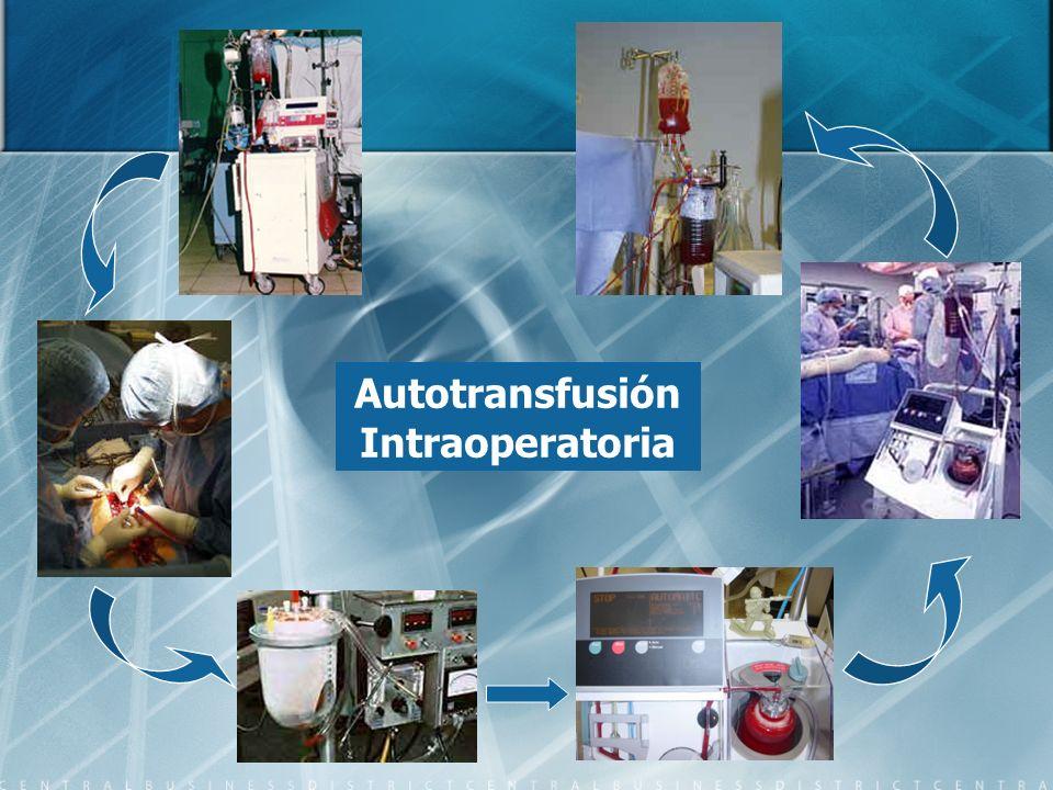 Autotransfusión Intraoperatoria