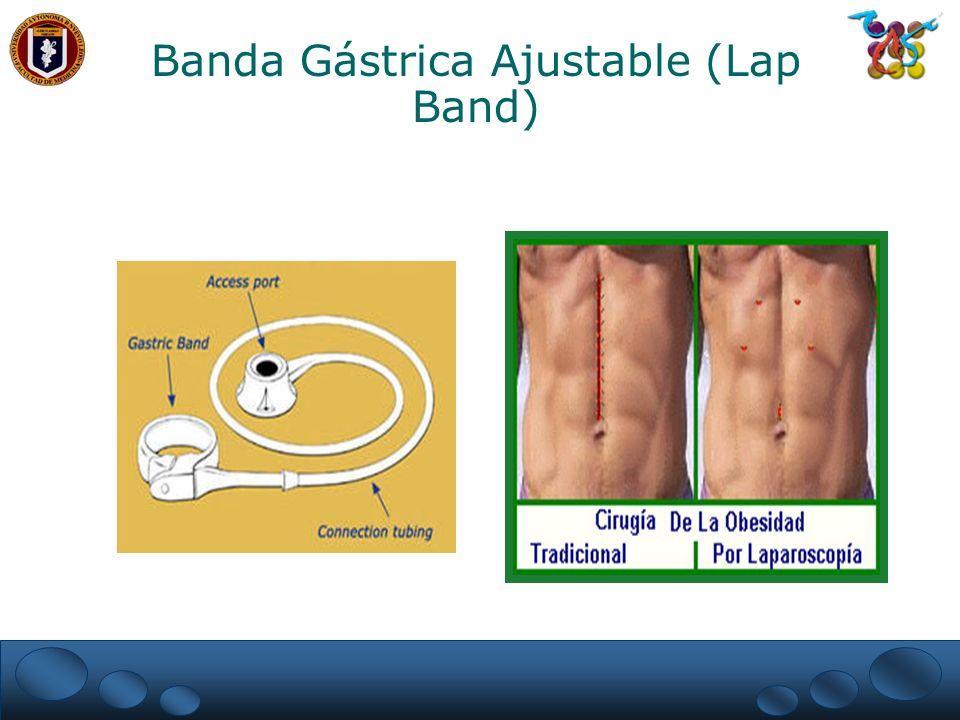 Banda Gástrica Ajustable (Lap Band)
