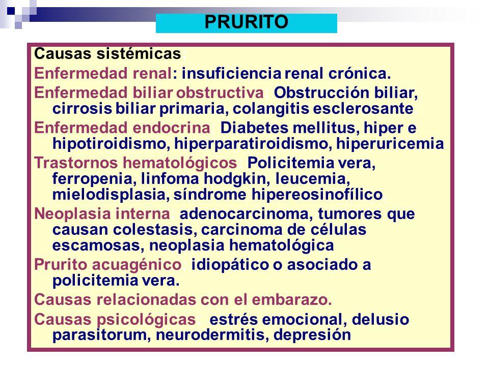 Causas sistémicas: Enfermedad renal: insuficiencia renal crónica. Enfermedad biliar obstructiva: Obstrucción biliar, cirrosis biliar primaria, colangi