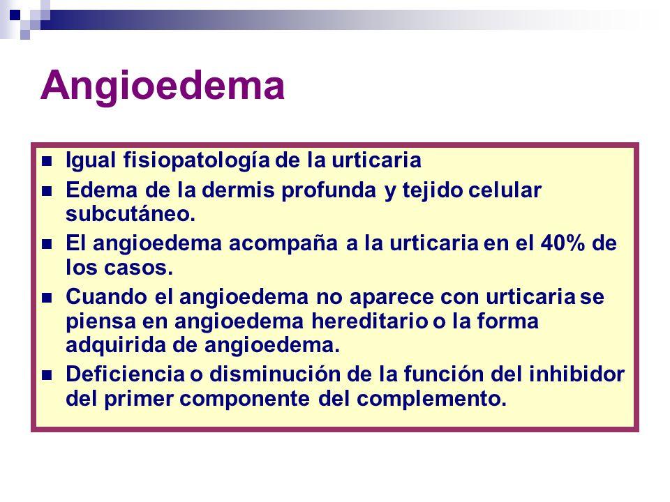 Angioedema Igual fisiopatología de la urticaria Edema de la dermis profunda y tejido celular subcutáneo. El angioedema acompaña a la urticaria en el 4