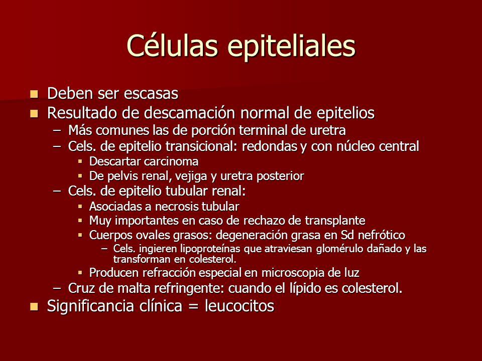 Células epiteliales Deben ser escasas Deben ser escasas Resultado de descamación normal de epitelios Resultado de descamación normal de epitelios –Más