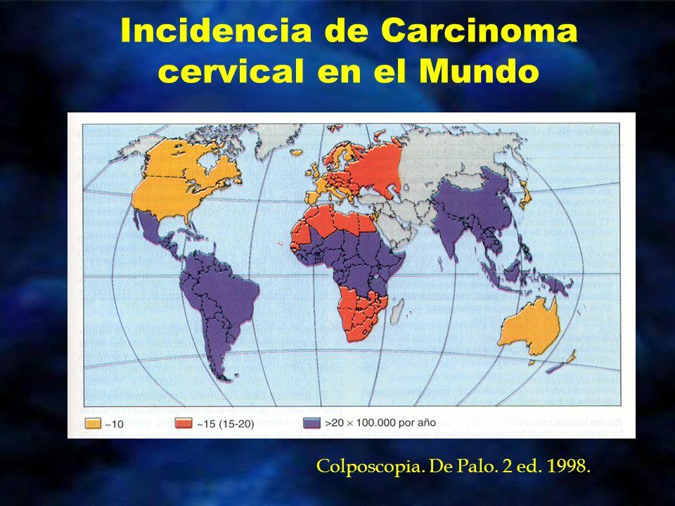 PATOLOGIA Clasificación histológica del CaCu Adenocarcinoma 15 a 20% –Mucinoso (endocervical, intestinal) –Endometroide –Bioglandular –Adenoma maligno –Células claras Cancer.