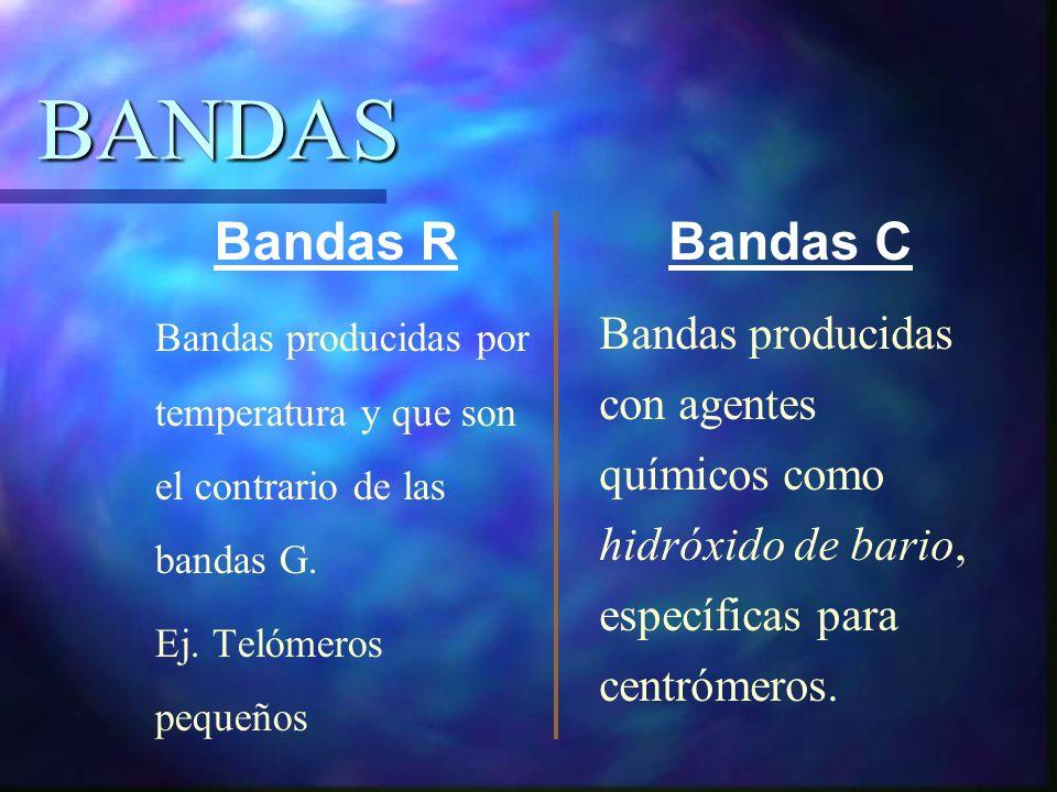 BANDAS Bandas producidas por temperatura y que son el contrario de las bandas G. Ej. Telómeros pequeños Bandas producidas con agentes químicos como hi