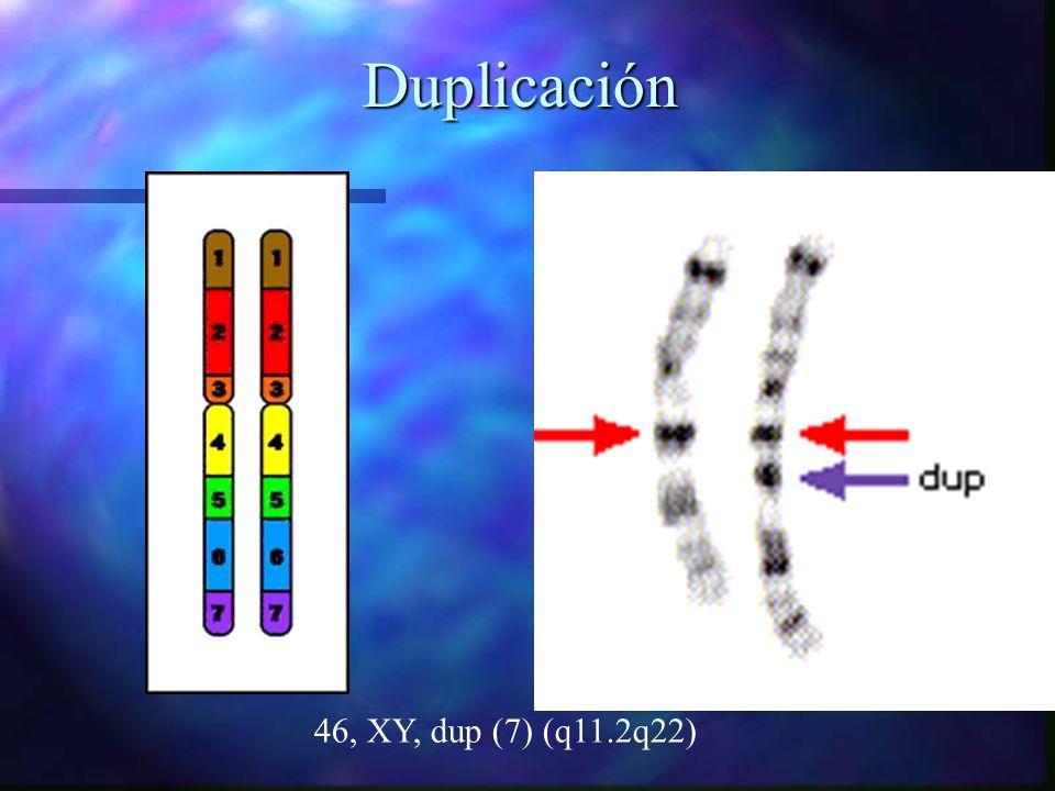 Duplicación Duplicación 46, XY, dup (7) (q11.2q22)