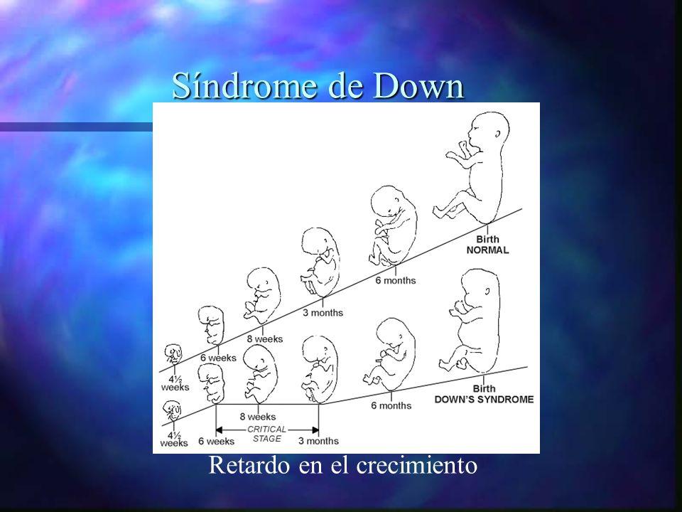 Síndrome de Down Retardo en el crecimiento