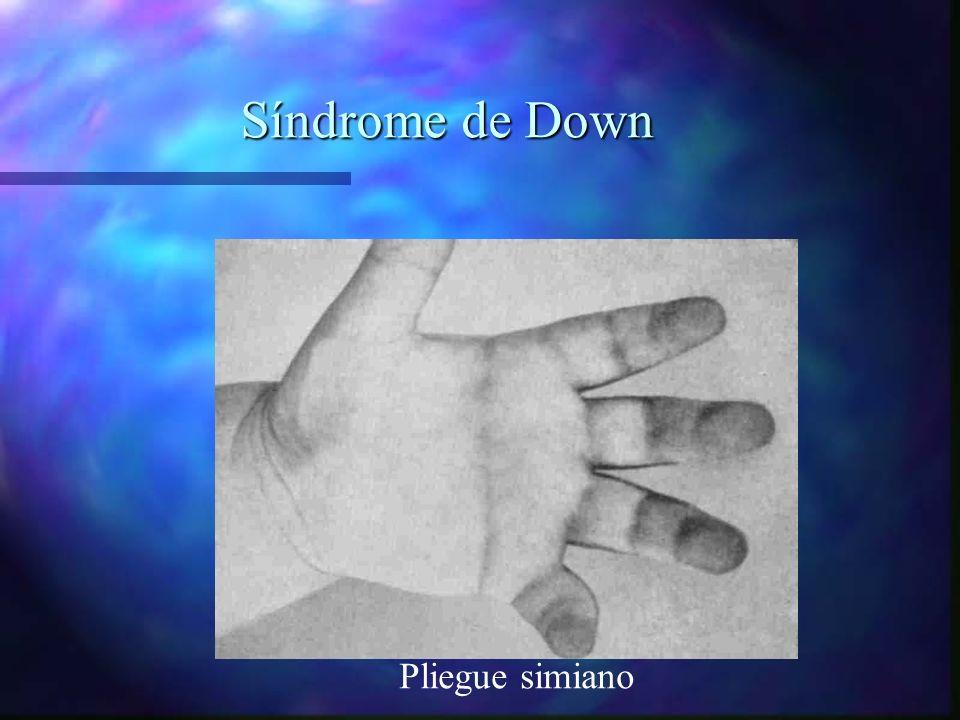 Síndrome de Down Pliegue simiano