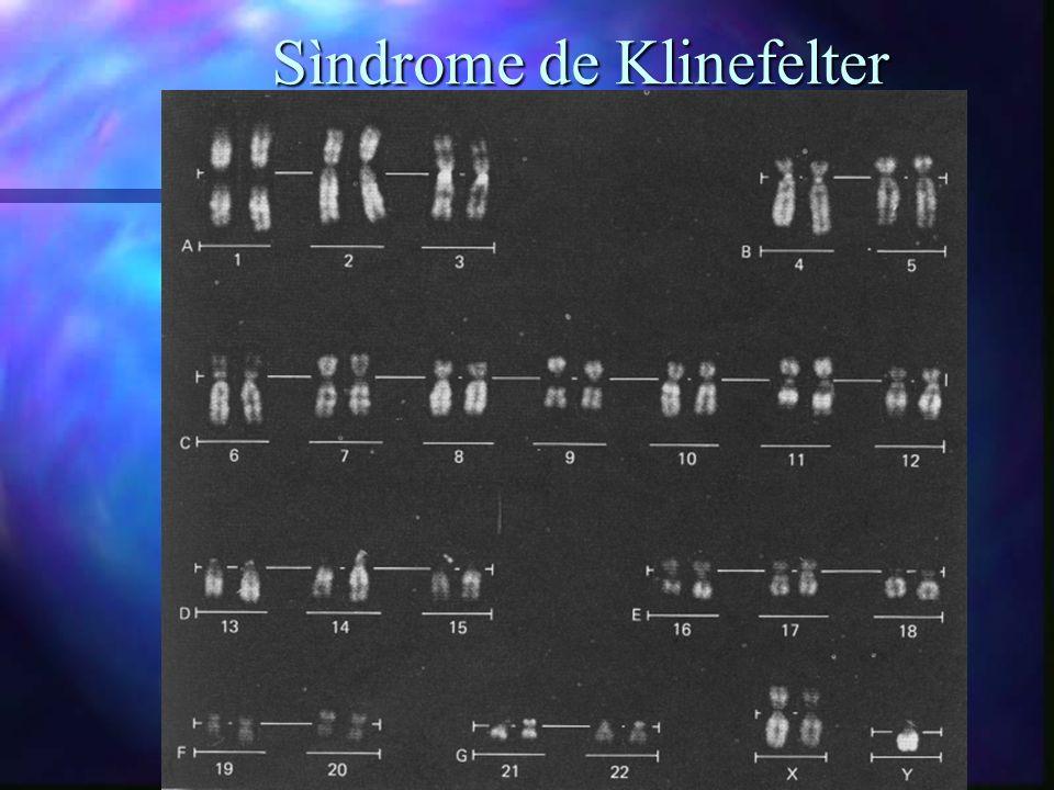Sìndrome de Klinefelter