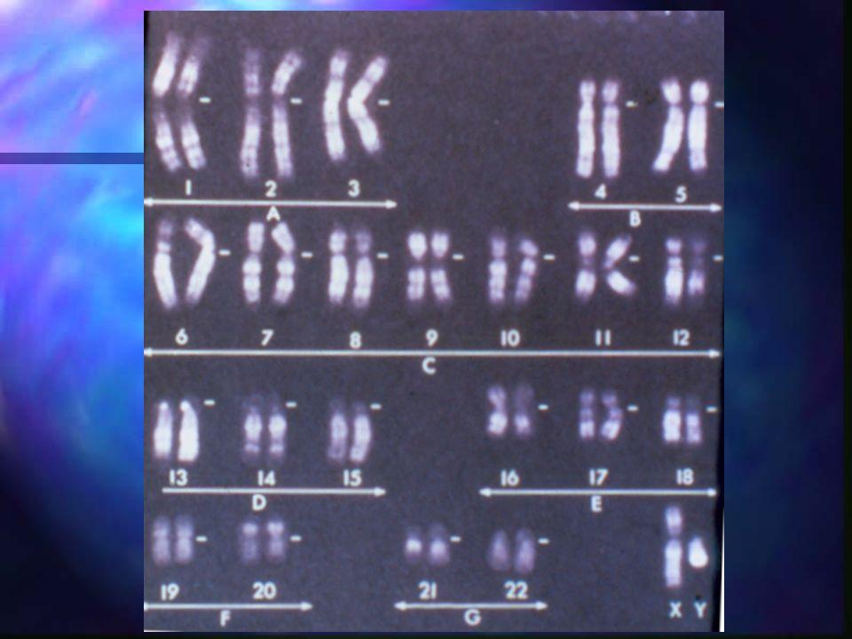 BANDAS Bandas producidas por temperatura y que son el contrario de las bandas G.
