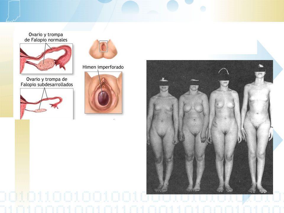 La secuela física más grave es el desarrollo de tumores de células germinales en las gónadas.