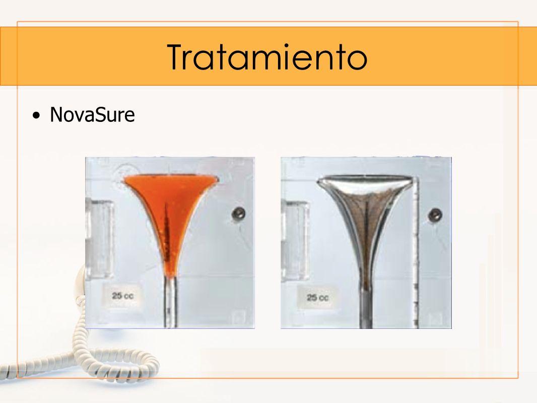 Tratamiento NovaSure
