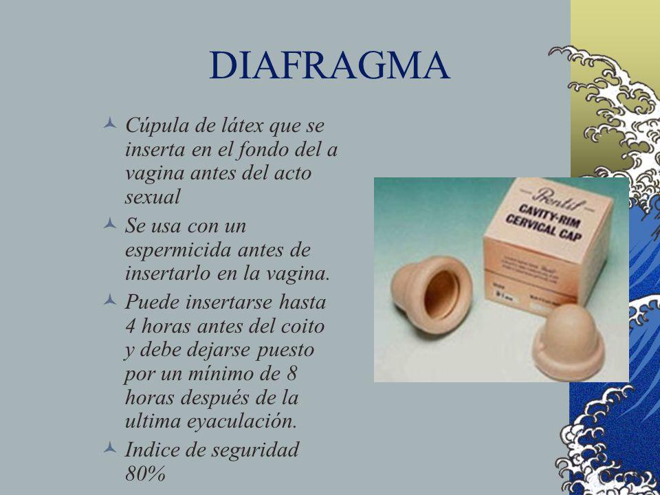 DIAFRAGMA Cúpula de látex que se inserta en el fondo del a vagina antes del acto sexual Se usa con un espermicida antes de insertarlo en la vagina. Pu