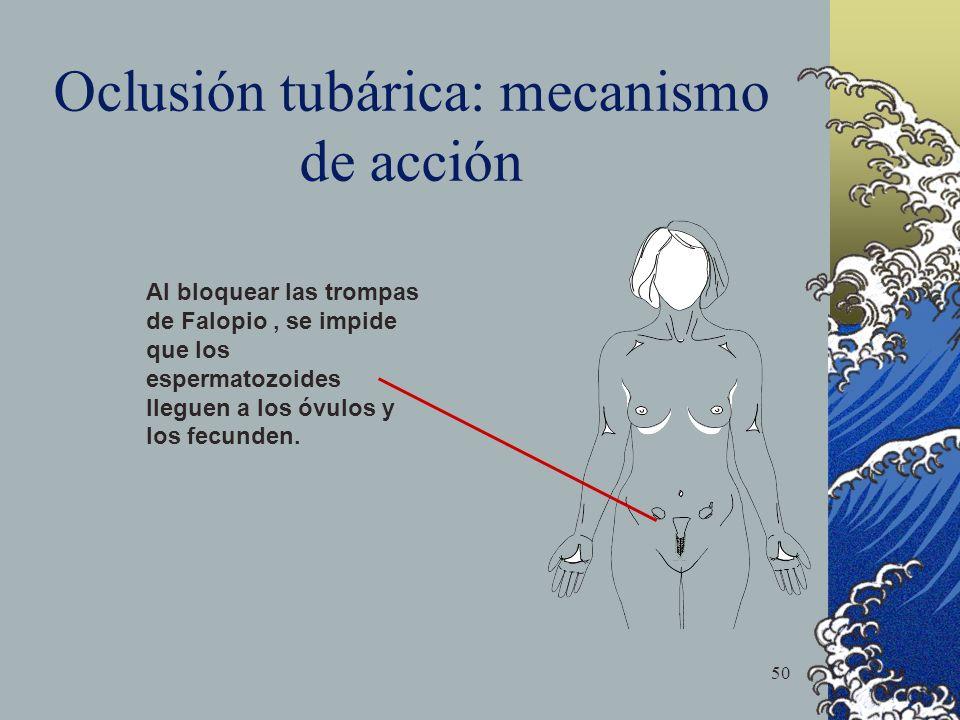 50 Oclusión tubárica: mecanismo de acción Al bloquear las trompas de Falopio, se impide que los espermatozoides lleguen a los óvulos y los fecunden.