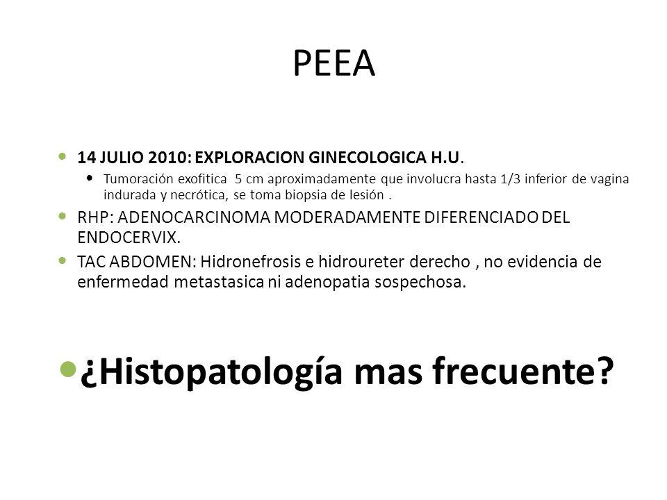 PEEA 14 JULIO 2010: EXPLORACION GINECOLOGICA H.U. Tumoración exofitica 5 cm aproximadamente que involucra hasta 1/3 inferior de vagina indurada y necr