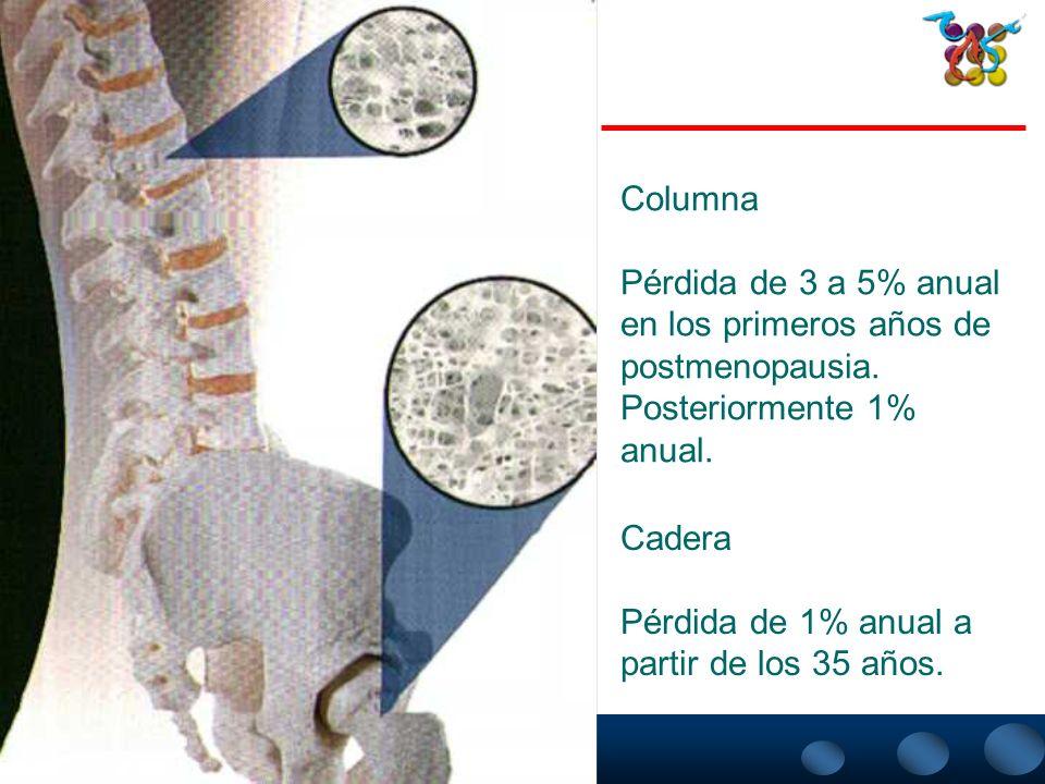 INCIDENCIA ANUAL DE FRACTURAS VERTEBRALES, DE CADERA Y DE ANTEBRAZO 1. National Osteoporosis Foundation. Fast Facts on Osteoporosis. 1997. Incidencia