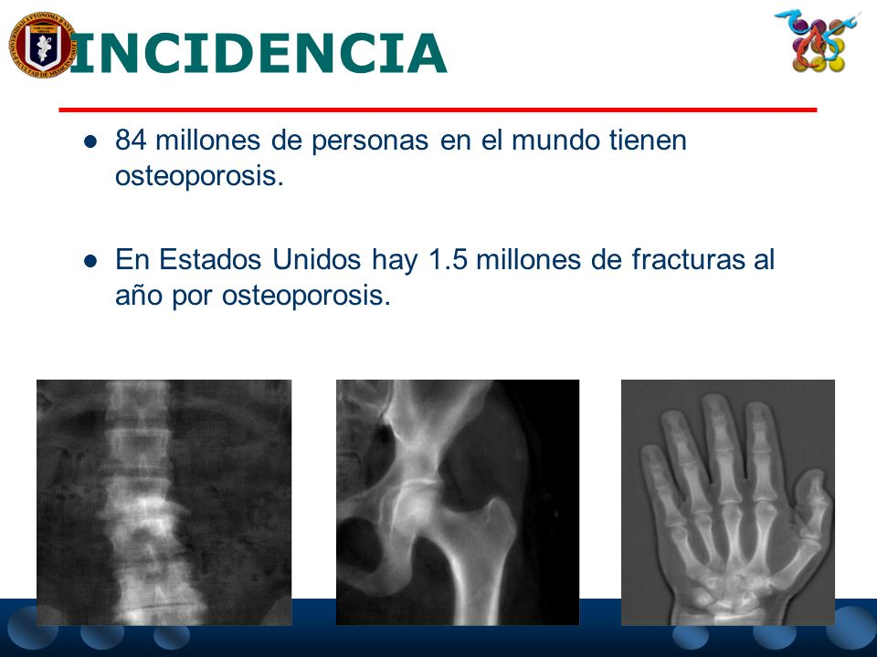 CAUSAS Osteoporosis primaria Osteoporosis secundaria Tipo 1Tipo 2 Postmenopáusica 20% de los casos Insuficiencia renal crónica Hipertiroidismo Hiperpa
