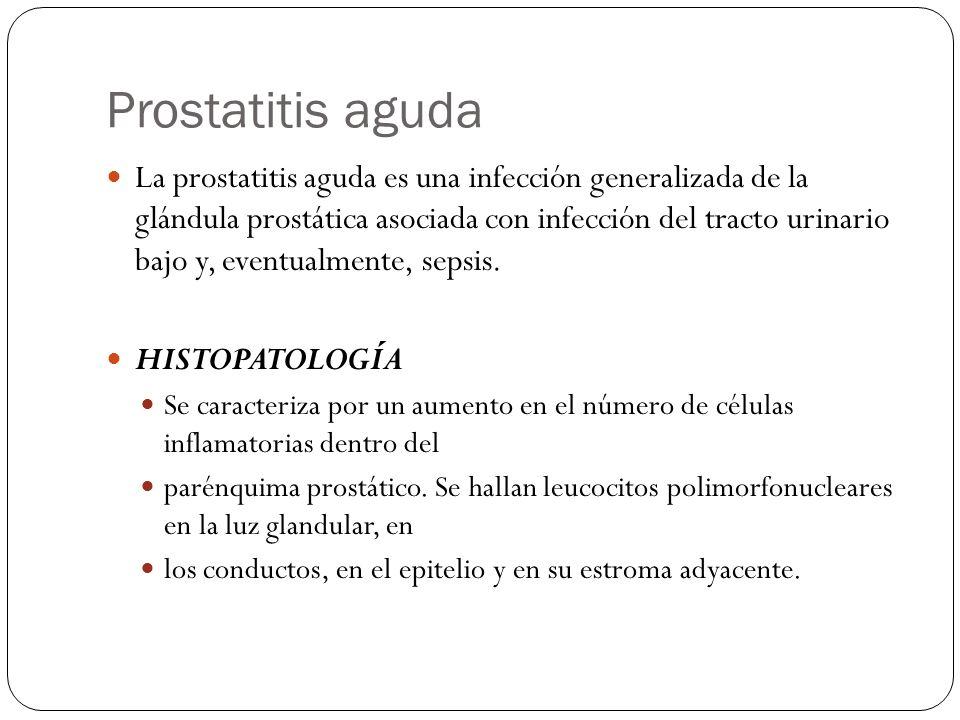 Prostatitis aguda La prostatitis aguda es una infección generalizada de la glándula prostática asociada con infección del tracto urinario bajo y, even