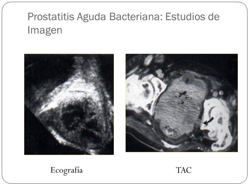 Prostatitis Aguda Bacteriana: Estudios de Imagen Ecografía TAC