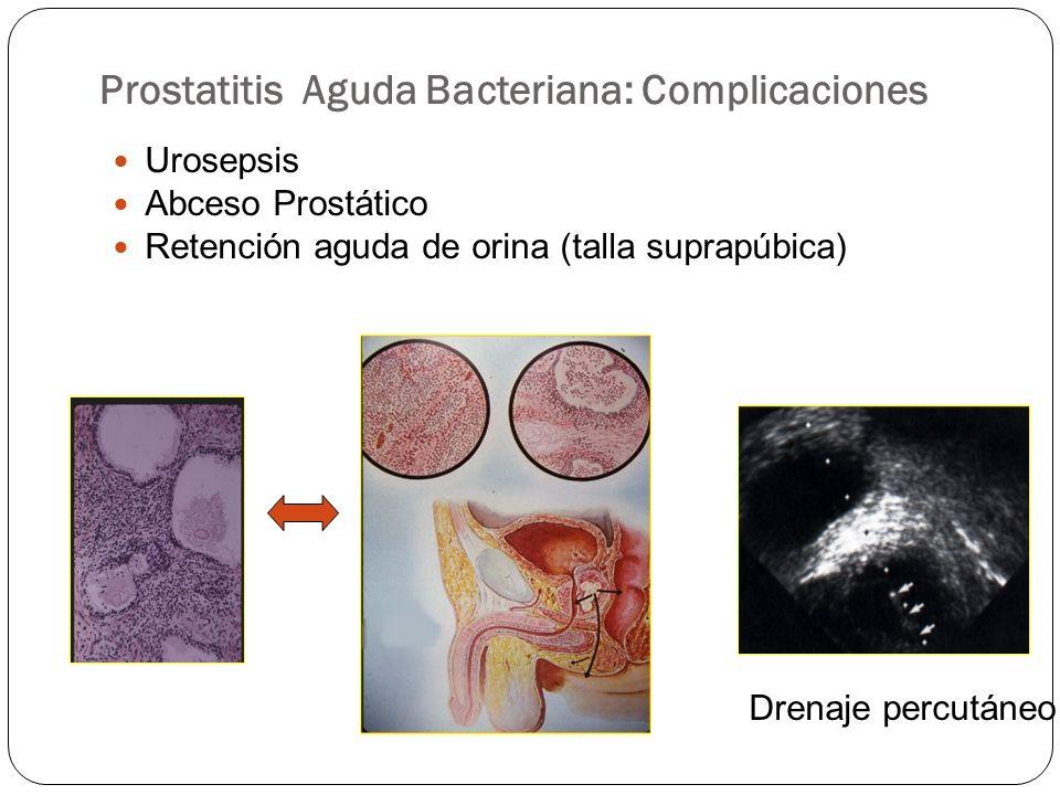 Prostatitis Aguda Bacteriana: Complicaciones Urosepsis Abceso Prostático Retención aguda de orina (talla suprapúbica) Drenaje percutáneo