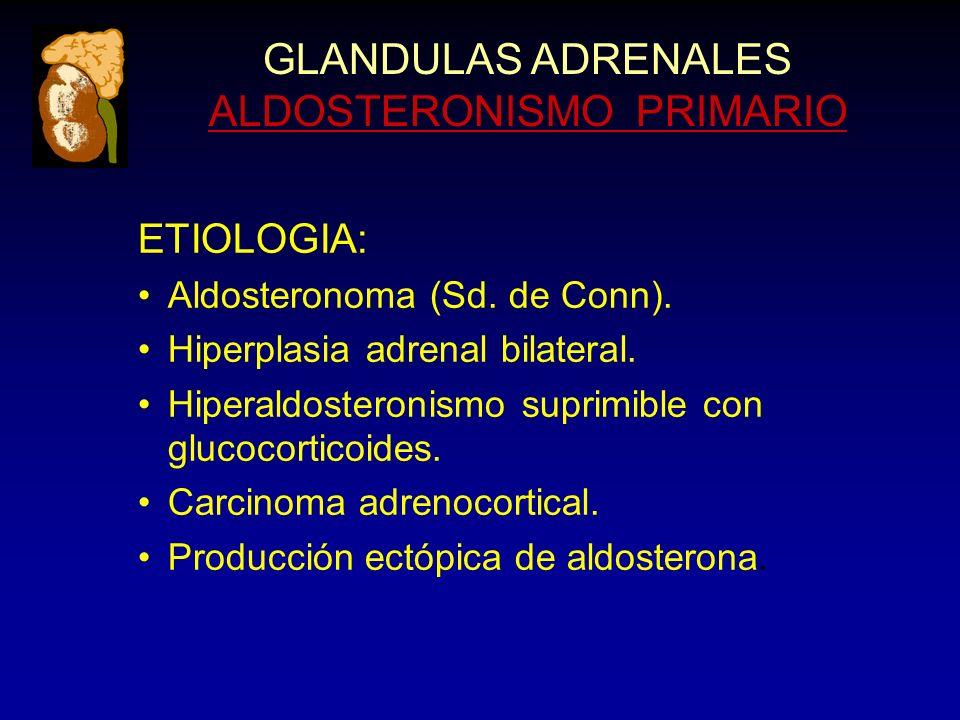 GLANDULAS ADRENALES ALDOSTERONISMO PRIMARIO ETIOLOGIA: Aldosteronoma (Sd. de Conn). Hiperplasia adrenal bilateral. Hiperaldosteronismo suprimible con