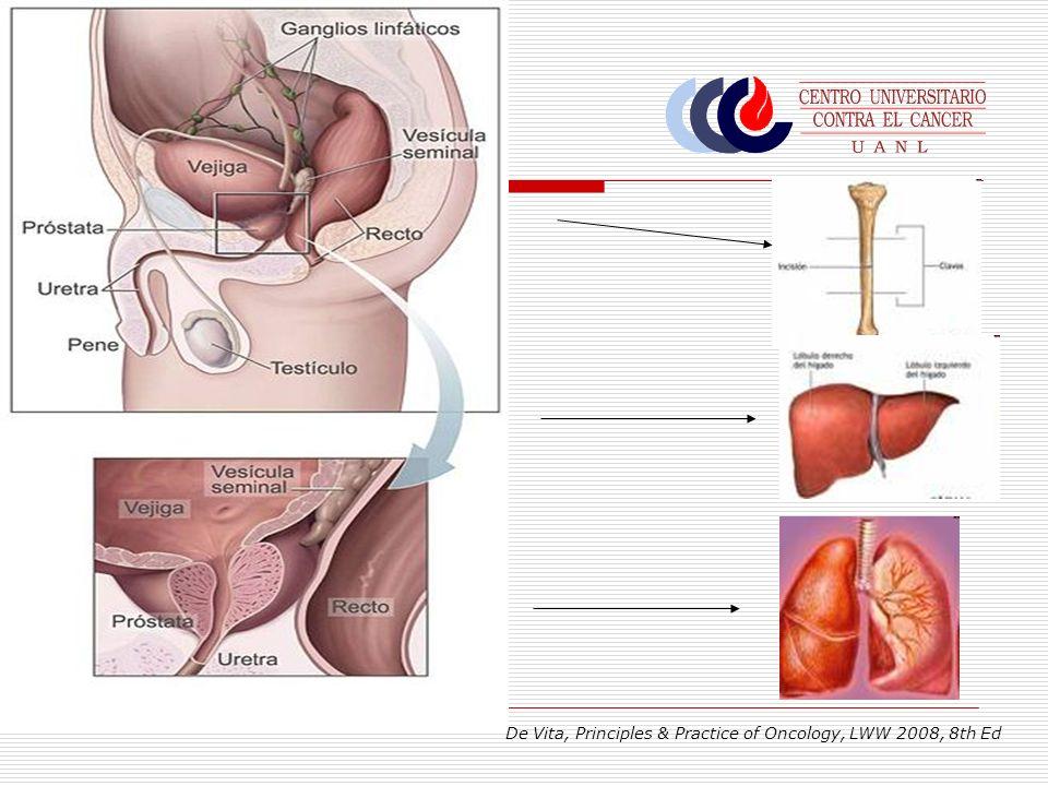 HPB 15% Ca Mayoría Ca Minoría Ca De Vita, Principles & Practice of Oncology, LWW 2008, 8th Ed